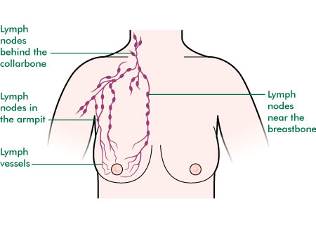 of breast drainage Lymph